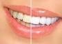 Эксподента стоматология
